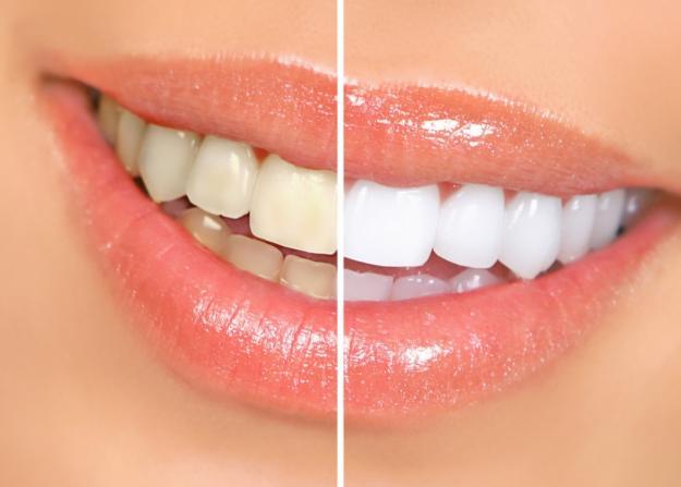 Clareamento Dental Um Guia Medo De Dentista
