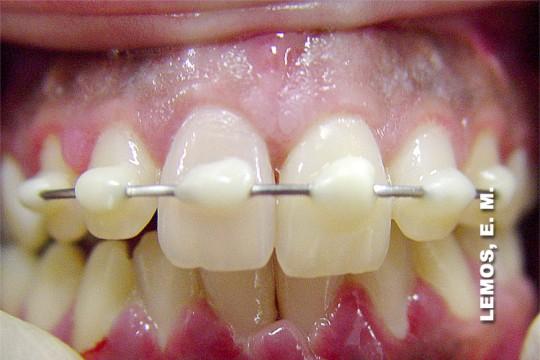 8cfc82eefae98 E dente permanente... fica mole  - Medo de Dentista