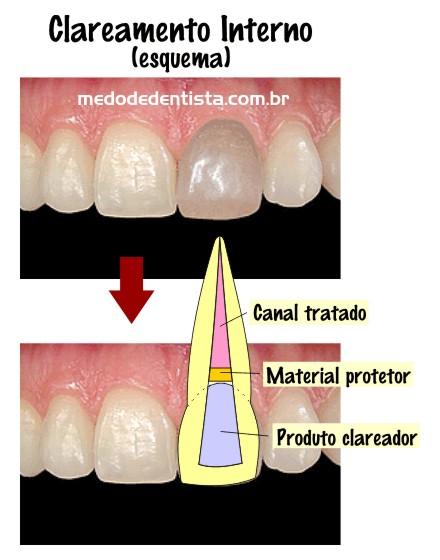 Clareamento Em Dente Com Tratamento De Canal Da Medo De Dentista