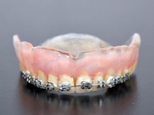 Aparelho com dentadura