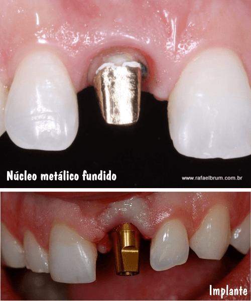 Núcleos e implante