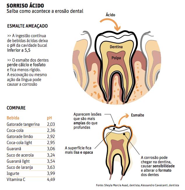 Erosão ácida: infográfico