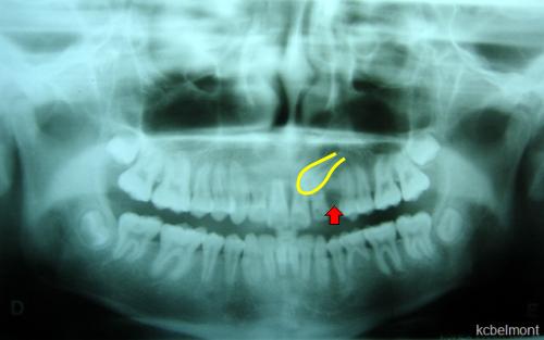 Radiografia panorâmica: canino impactado