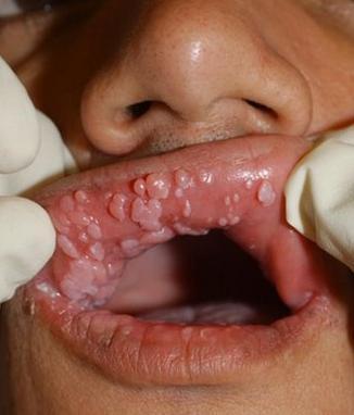 Papilomas em boca