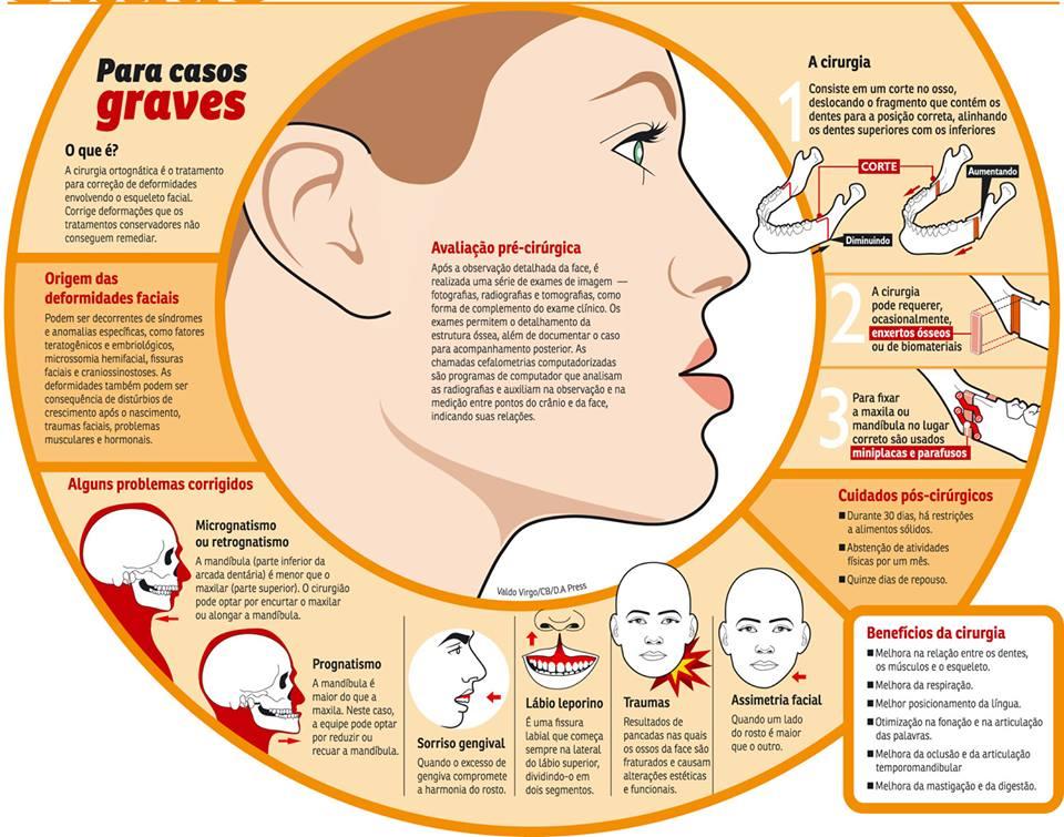 Cirurgia ortognatica - infografico