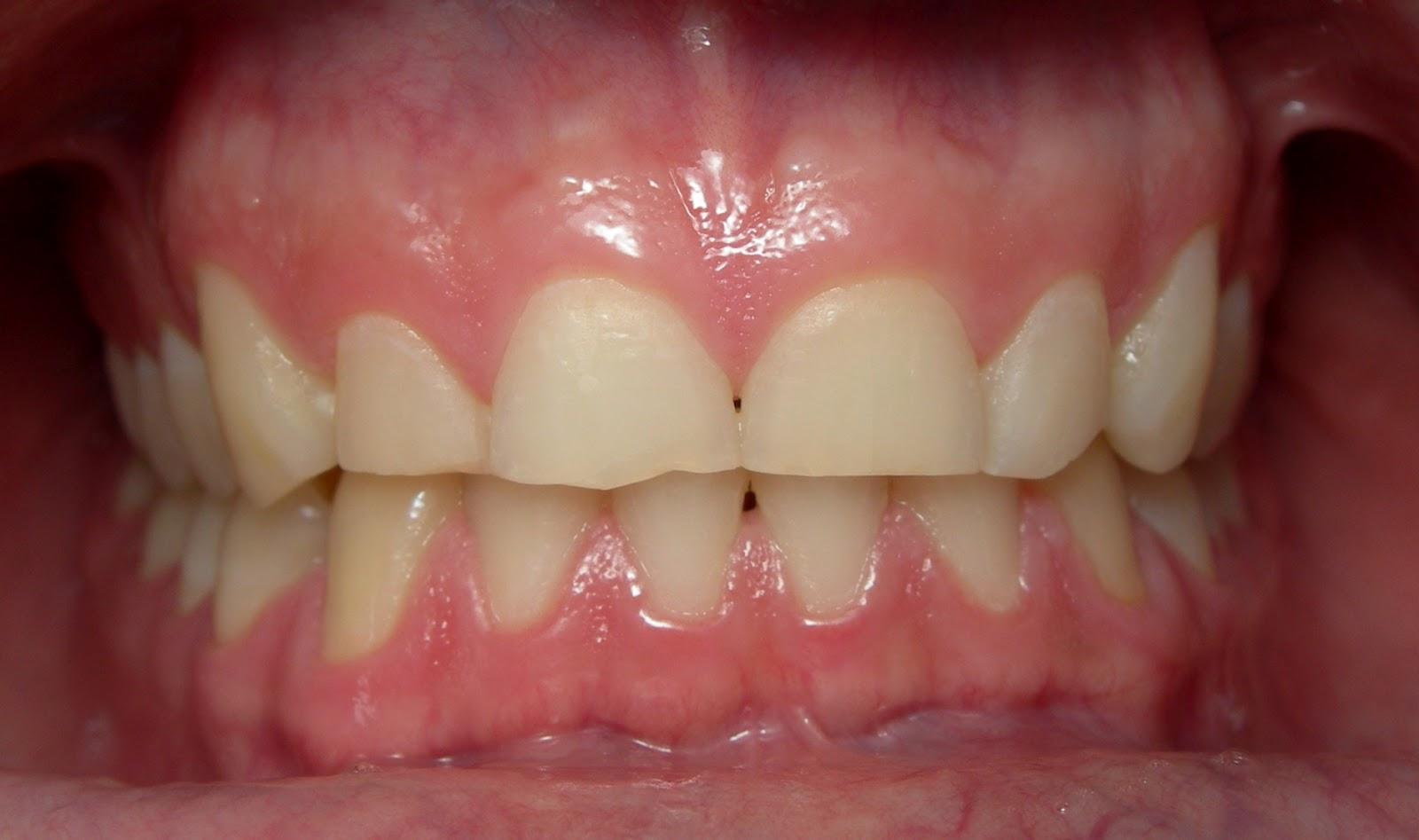 Dentes com desgaste por causa do bruxismo