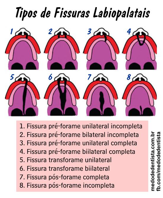 Tipos de fissuras labiopalatais