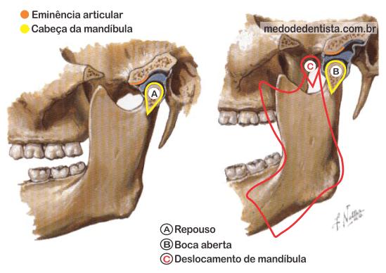Deslocamento de mandíbula