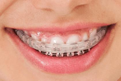 Protetor bucal de silicone