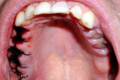 Como limpar o local da extração de um dente