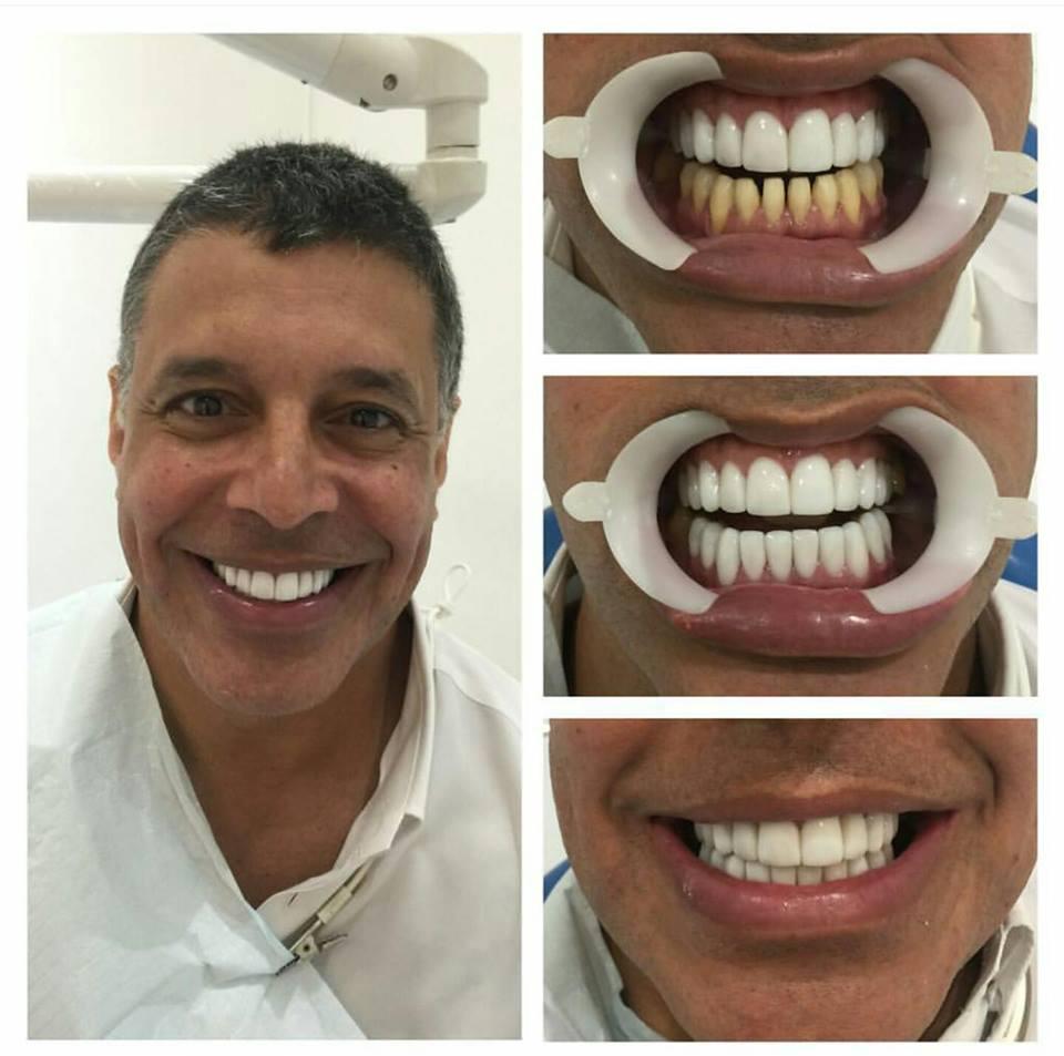 Dentes brancos cuidado com o exagero medo de dentista sorriso alexandre frota altavistaventures Image collections