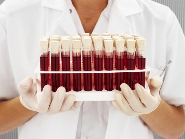 Entenda o hemograma
