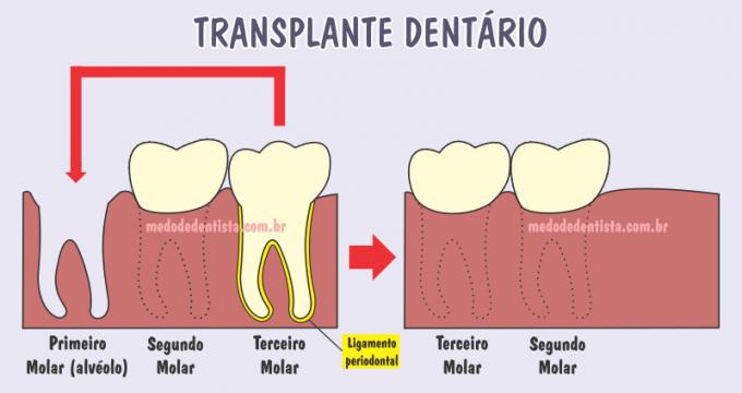 Transplante dentário