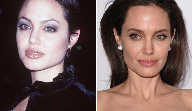 Angelina Jolie antes e depois da bichectomia