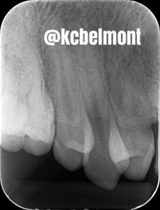 Transposição dentária
