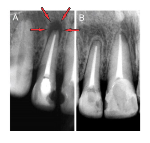 Granuloma periapical