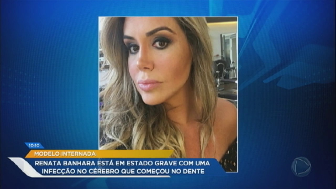 Renata Banhara com infecção no dente