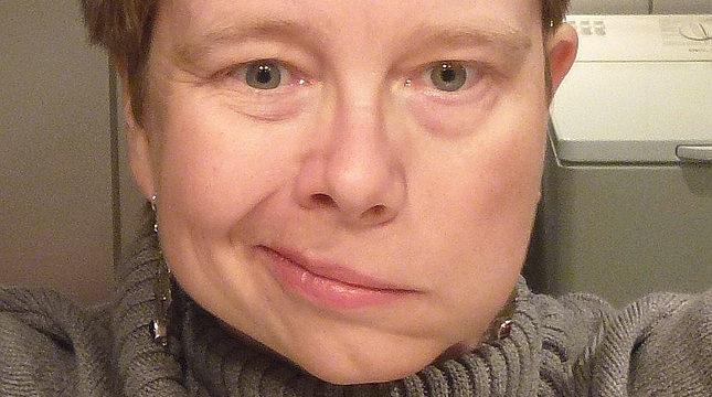 Pessoa acometida por paralisia facial do lado esquerdo